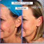 Rodan + Fields Ultimate Skin Care